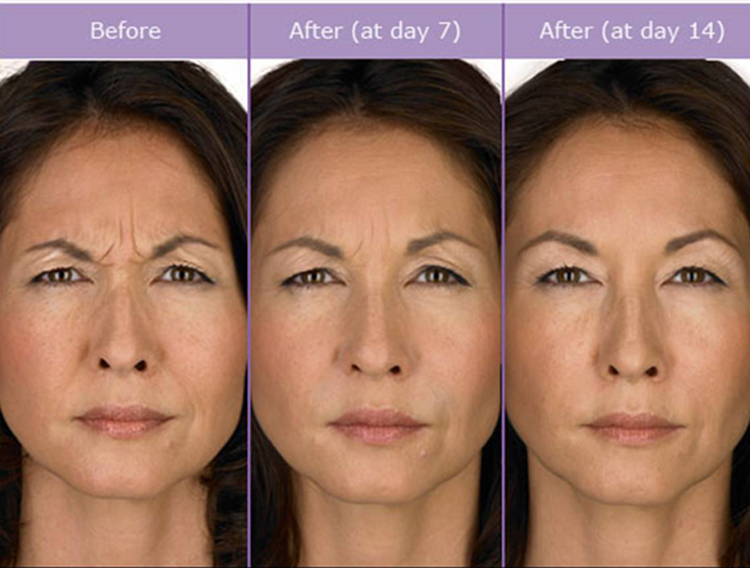 Non-surgical ways to stop signs of aging